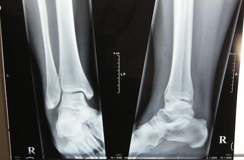 radiografia-1bis